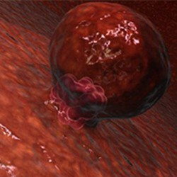 implantacija blastociste