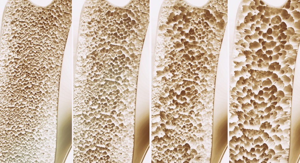 Razvoj osteoporoze prikazan kroz 4 faze